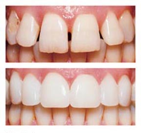 porcelain veneer and composite veneers geelong
