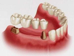 geelong-dental-fixed-bridges