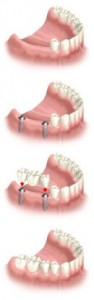 Geelong dental implants several teeth