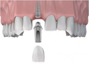 dental implant single teeth